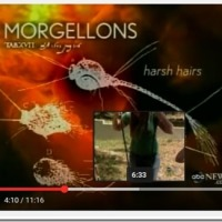 "Has KY been infected with ""Morgellons Disease"", or is there another type parasite that is being seen in the area?"